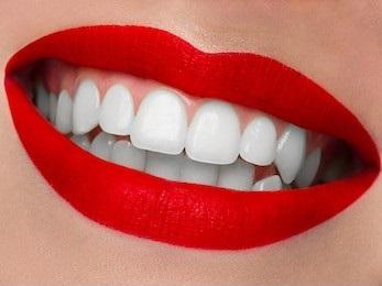 Brighten and Whiten Your Smile