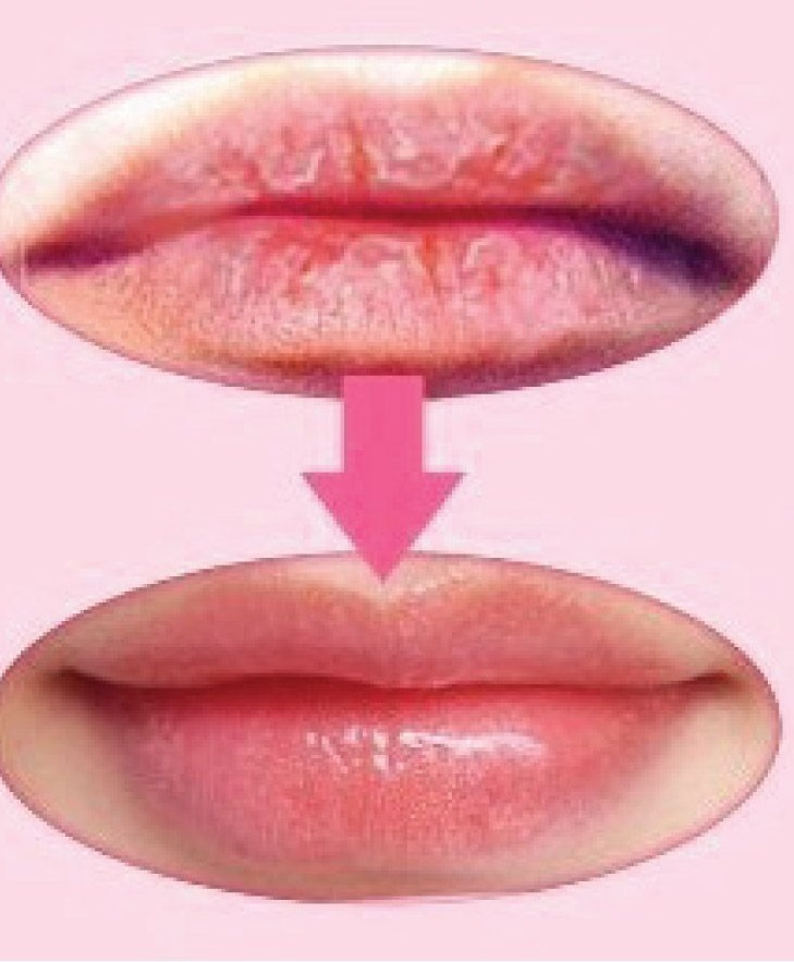 Hack for Chapped lips