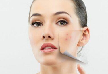 Waterproof Foundation for Acne Prone Skin